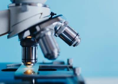 """Analiza rezultatov raziskave """"Dostop do zdravstvenih storitev bolnikov s PB"""""""